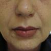 umplere acid hialuronic sant nasolabial