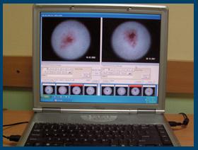 dermatoscopie  digitala drmihalceanu